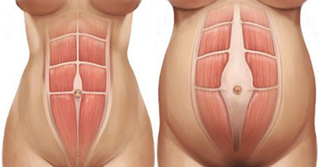 Diastasis Recti During Pregnancy